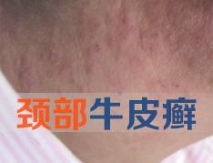 颈部牛皮癣怎么治疗