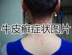 背部牛皮癣症状有什么